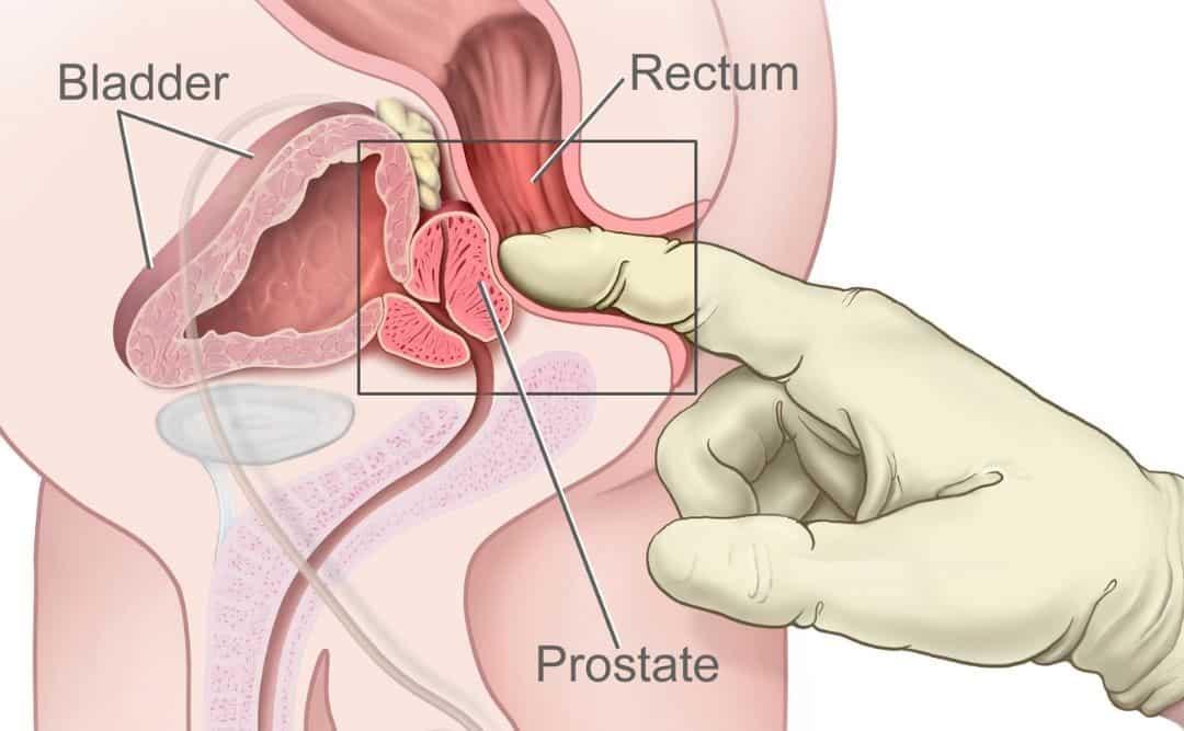 prostate massage tantric massage london